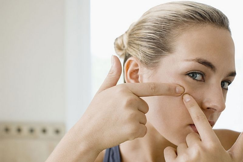 6 Easy Home Remedies For Removing Blackheads Effectively