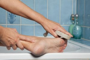 How To Fix Cracked Heels Permanently