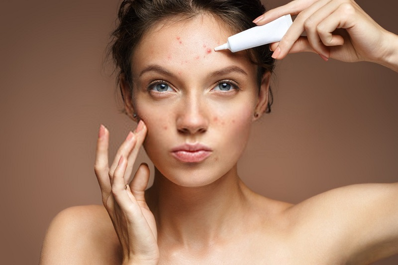 Beauty-Benefits-Of-Coconut-Oil-Coconut-oil-against-acne-and-skin-impurities