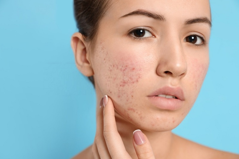 Beauty-Benefits-Of-Coconut-Oil-Coconut-oil-against-boils-and-acne