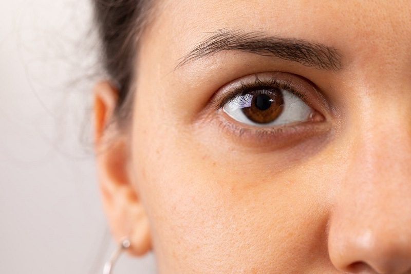 Beauty-Benefits-Of-Coconut-Oil-Coconut-oil-against-dark-circles